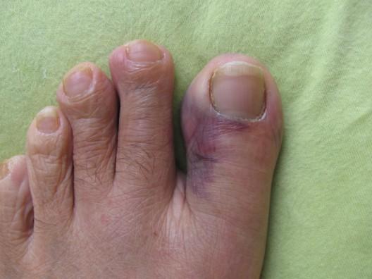 dedo machucado
