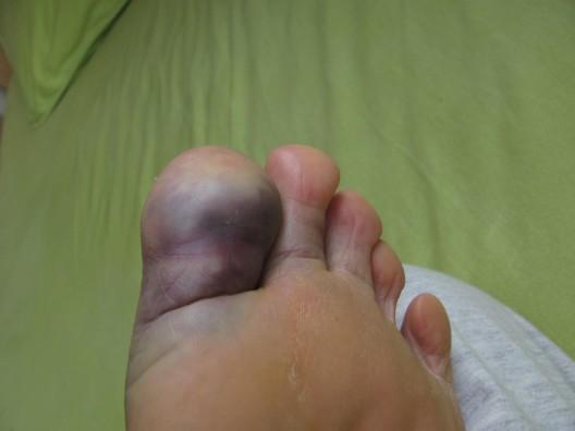 dedão do pé